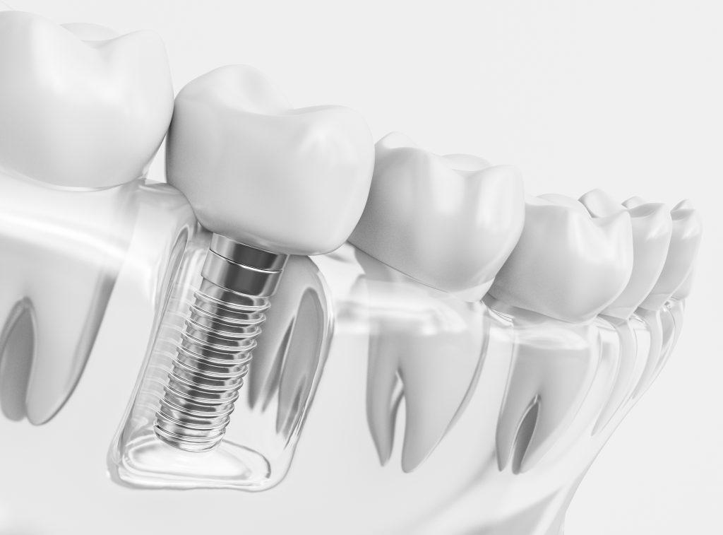 Zahnarzt Itzehoe - Darstellung eines Zahn-Implantats