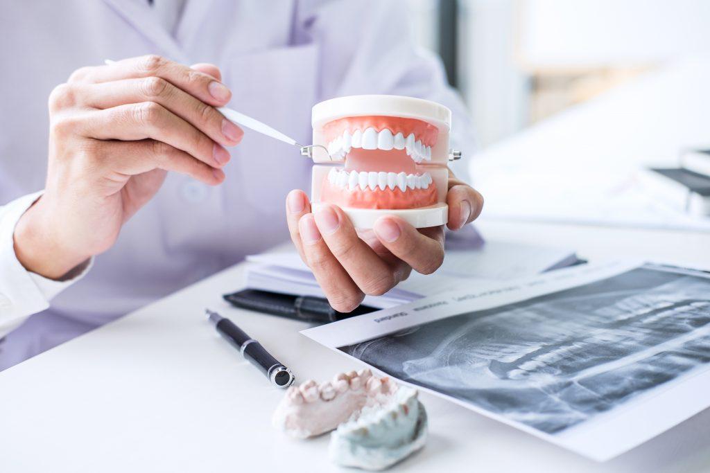 Zahnarzt Itzehoe - Gebiss mit schönen Zähnen